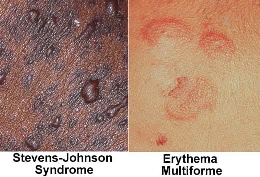 Which Rashes to Worry About: Slideshow