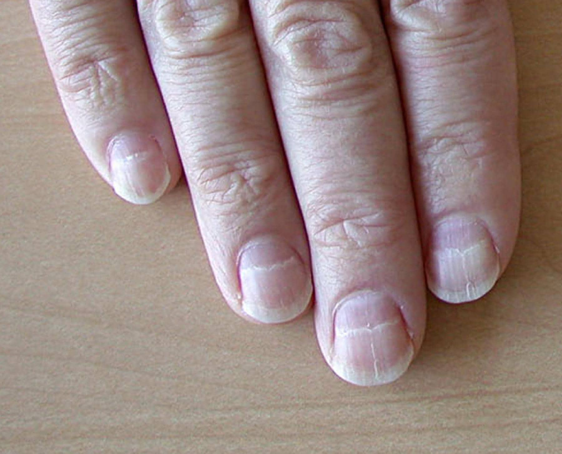 Muehrcke Lines of the Fingernails