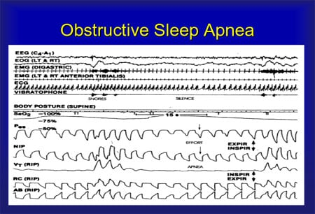 What Is Obstructive Sleep Apnea Syndrome