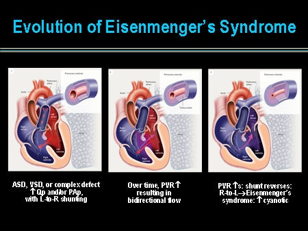 Eisenmenger's Syndrome: Pathophysiologic Insights and ...