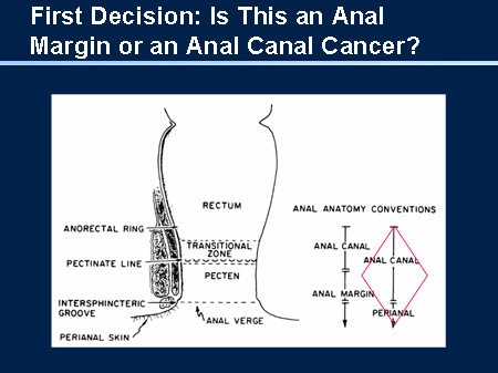 anal canal of carcinoma