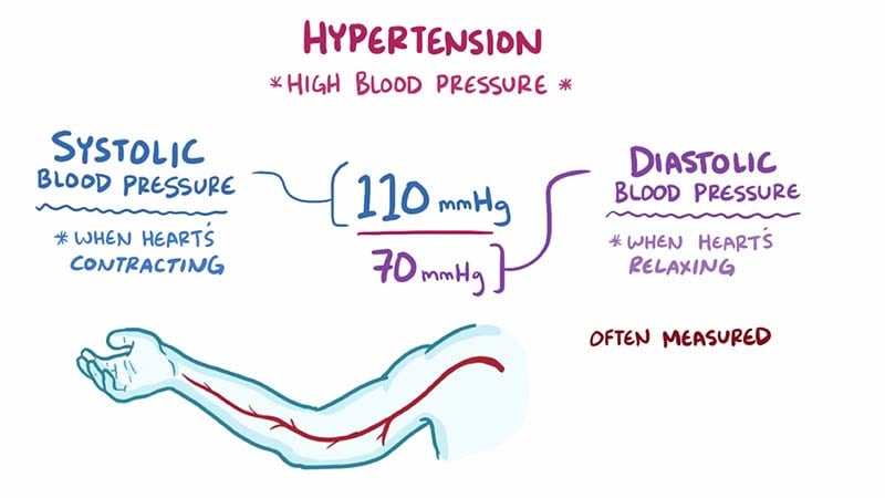 Hypertension: Overview Video