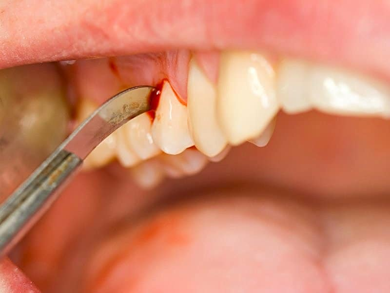 Gum Disease And Increased Link To Many Cancers