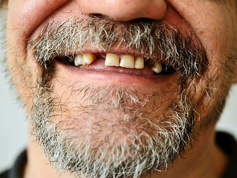 tooth loss tied to cv risk markers in global chd cohort