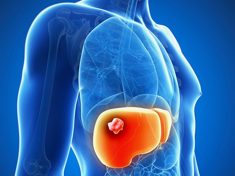 Nivolumab improves sorafenib treated liver cancer - Vertigini a letto cause ...