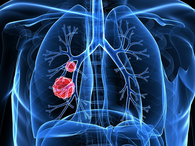 Lung Cancer Rates Surging in Never-Smokers