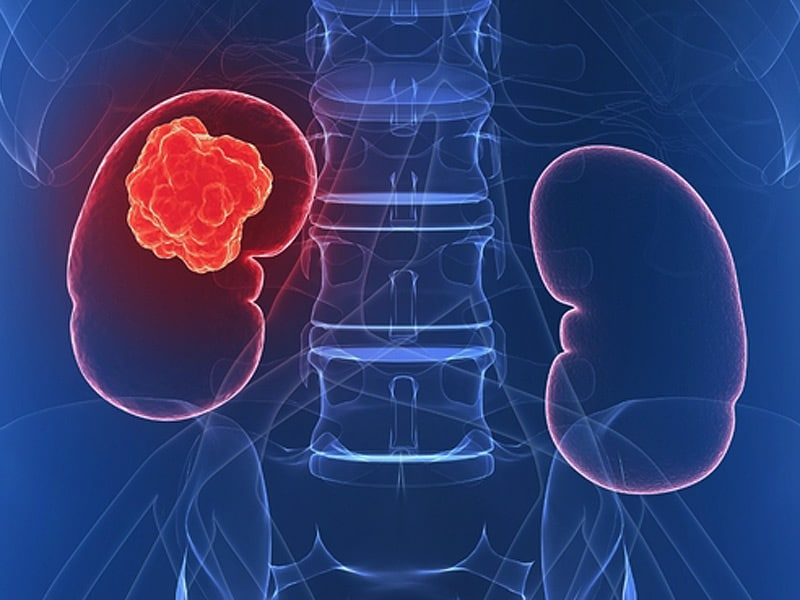 Finally Drug Improves Survival In Pretreated Kidney Cancer