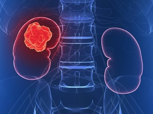 Finally, Drug Improves Survival in Pretreated Kidney Cancer