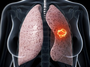 'No Brainer': IMRT for Locally Advanced NSCLC