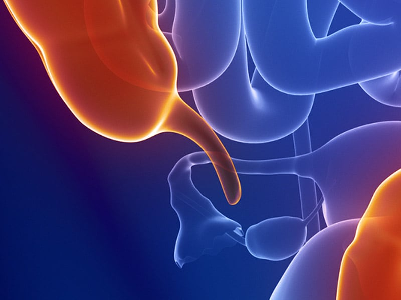 Appendix Removal Linked To Lower Future Parkinsons Risk