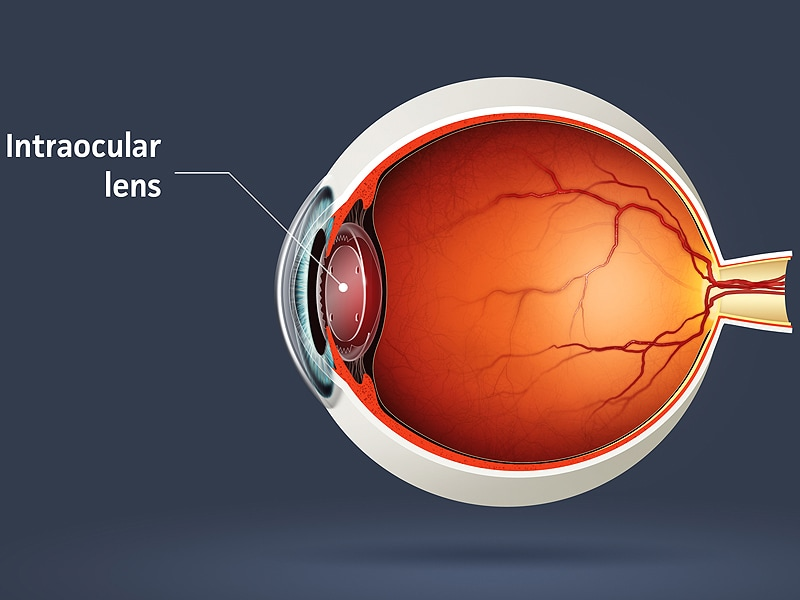 Tecnis multifocal iol vs crystalens accommodating