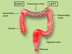 In Colon Cancer Big Difference Between Right Left Side Awesome Investors