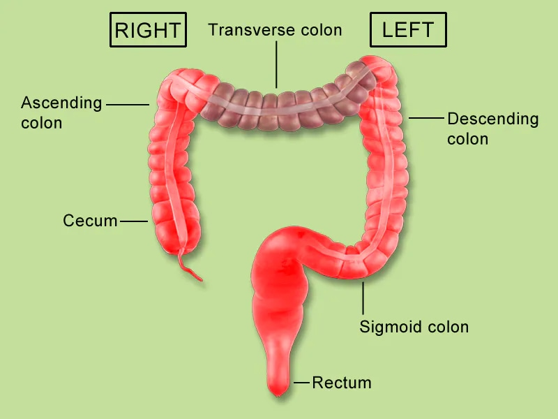 left vs right difference in crc: now practice changing? rectum diagram