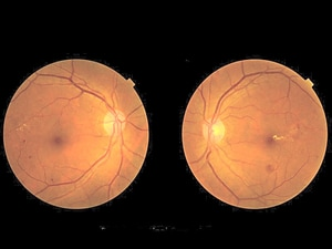 Blindness Due to Diabetic Retinopathy Surges Worldwide