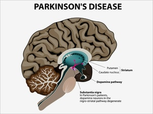 Statin Use Linked to Increased Parkinson's Risk