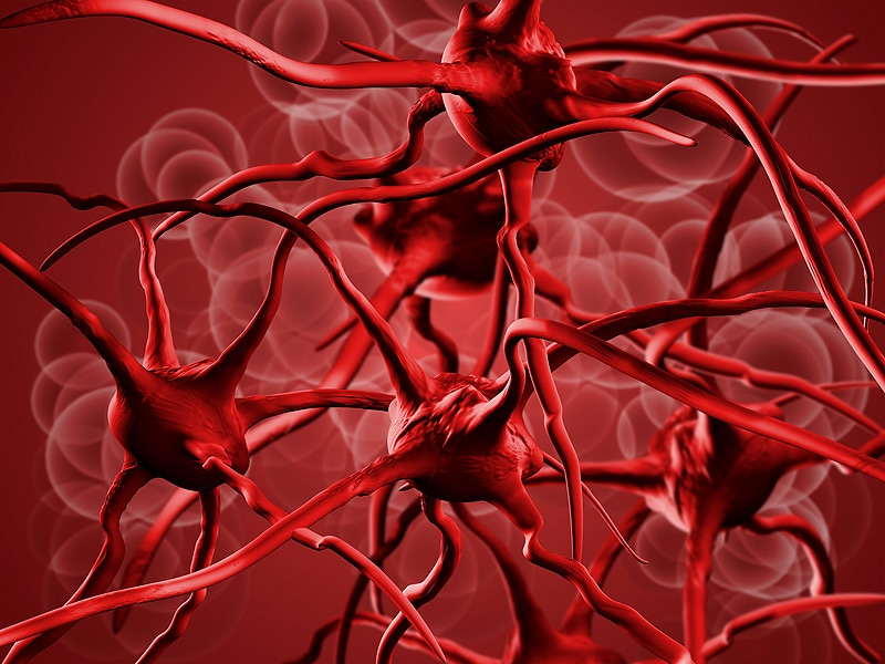 Mild Anemia Predicts Poor Outcome After Intracerebral Hemorrhage