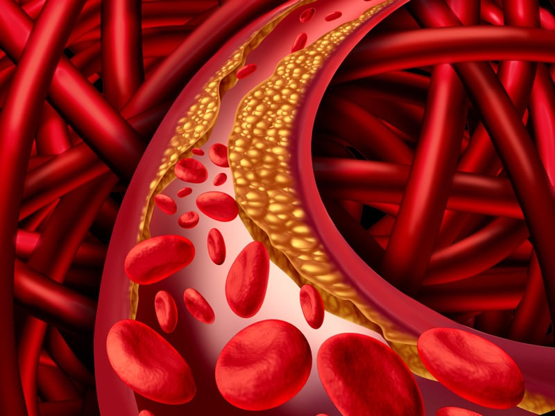 Crohn's, Colitis Increase Risk for Acute Arterial Events