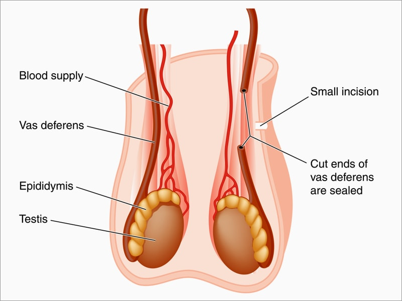 vasectomy and prostate cancer