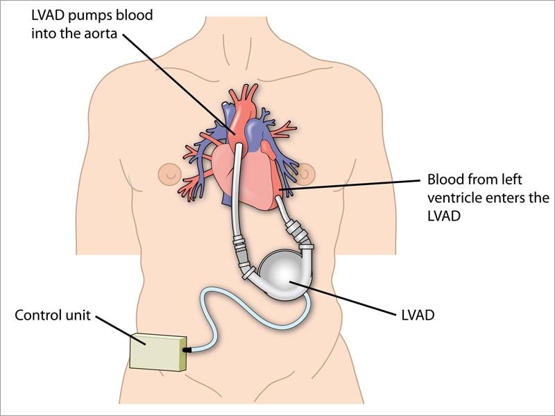 International society of heart and lung transplantation ishlt less bleeding clotting with heartmate 3 lvad ccuart Choice Image