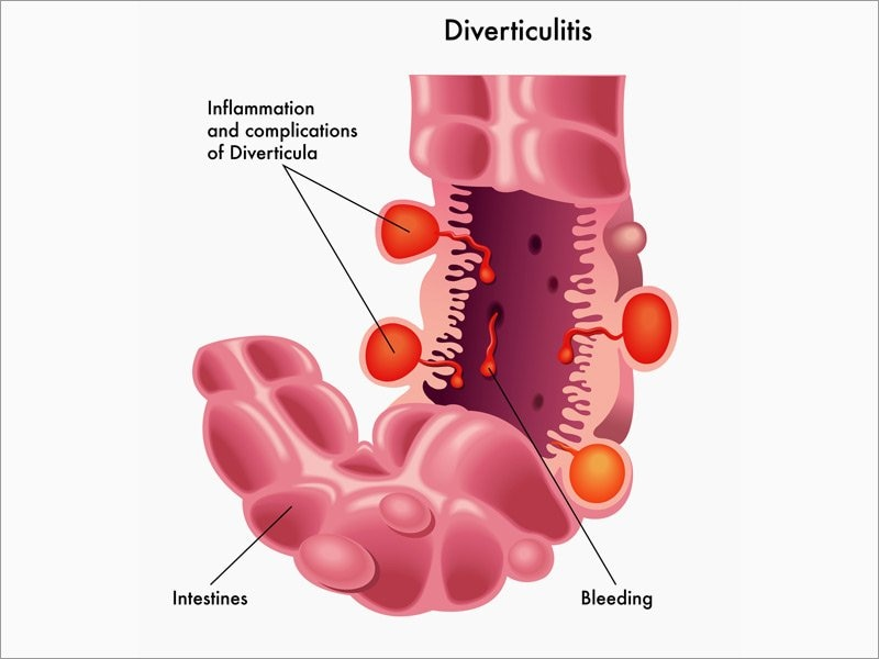 How To Approach Purulent Perforated Diverticulitis