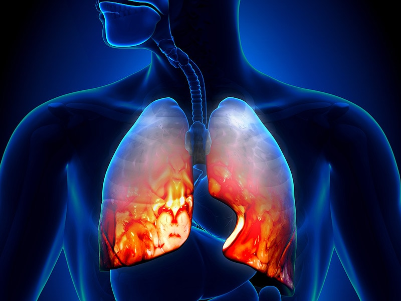 Pneumonia Treatment Failure Rates High