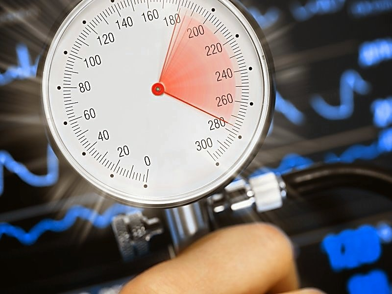 New ACC/AHA Hypertension Guidelines Make 130 the New 140
