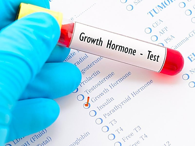 Oral Test for Adult Growth Hormone Deficiency Approved in US