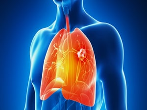Durvalumab New Standard in Stage III Unresectable Lung Cancer
