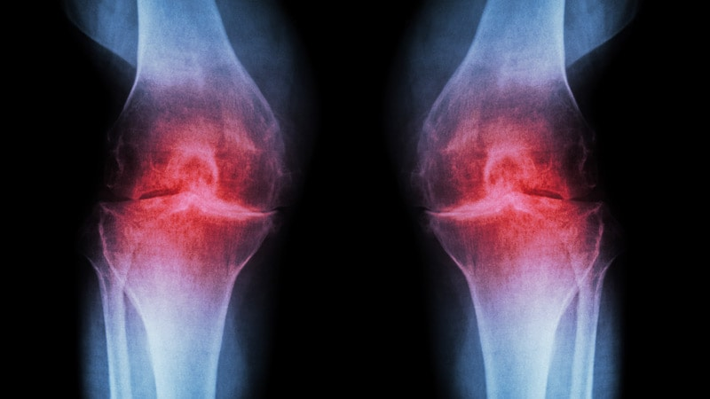Tramadol Linked to Higher Mortality in Osteoarthritis