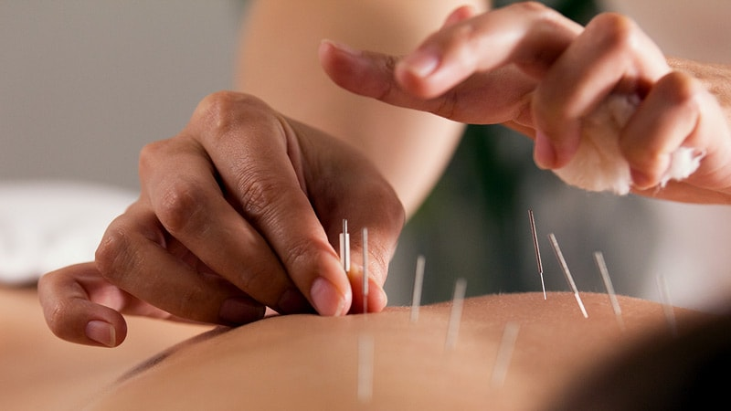 Acupuncture in the ED a Beneficial Non-Opioid Option for Pain