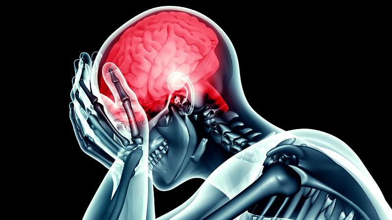 Brain Imaging Reveals Neuroinflammation in Migraine With Aura