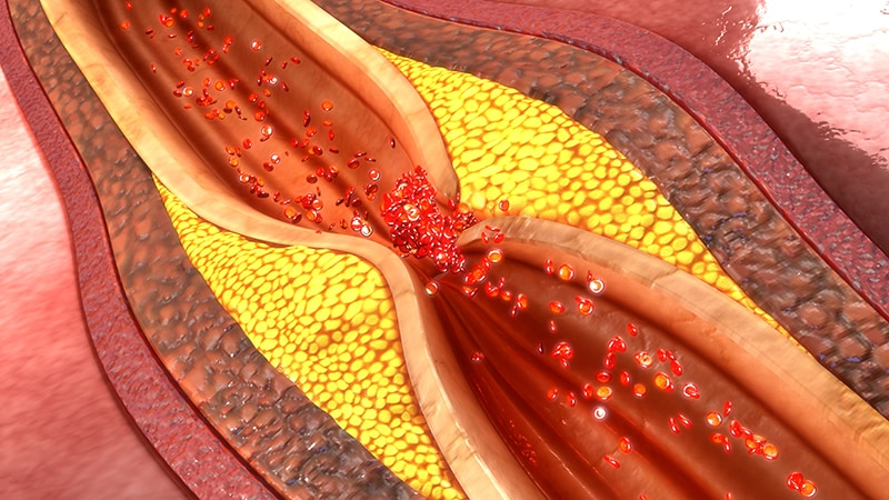 Fast Five Quiz: Coronary Artery Atherosclerosis