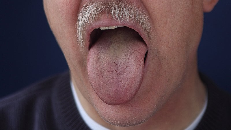 Less Tongue Fat From Weight Loss May Help Sleep Apnea