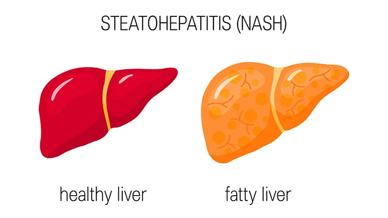 Nonalcoholic Liver Disease 'an Epidemic of the 21st Century'