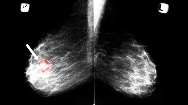 Mammography Cuts Risk For Fatal Breast Cancers New Data