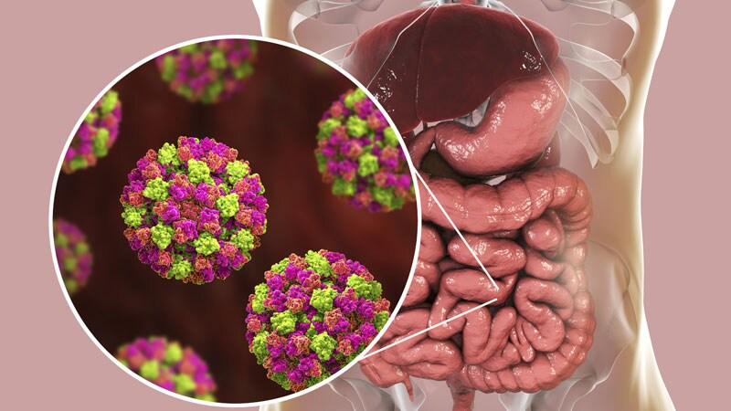 Fast Five Quiz: Norovirus
