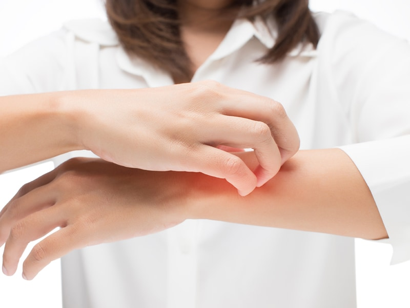 Longer Omalizumab Use Eases Itch From Chronic Hives