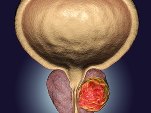 New Data: Finasteride Safely Prevents Prostate Cancer