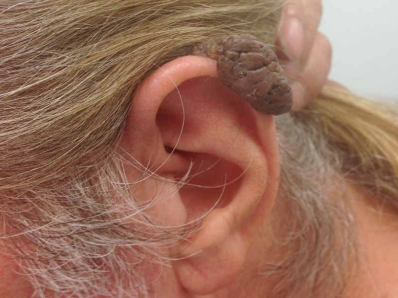 A Pigmented Nodular Growth on the Ear