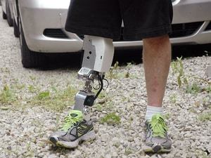 Powered Prosthetic Leg on the Horizon
