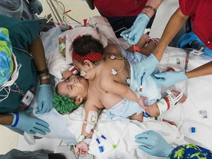 CT and 3D Printing Help Teams Separate Conjoined Twins