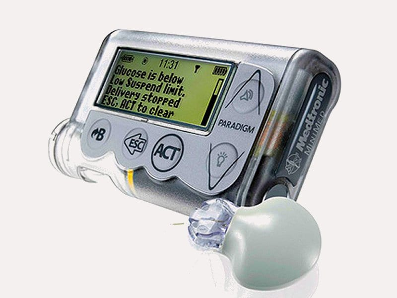 Nice Okays Veo System For Certain Type 1 Diabetic Patients