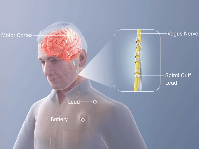 Vagal Nerve Stimulation Improves Arm Function After Stroke