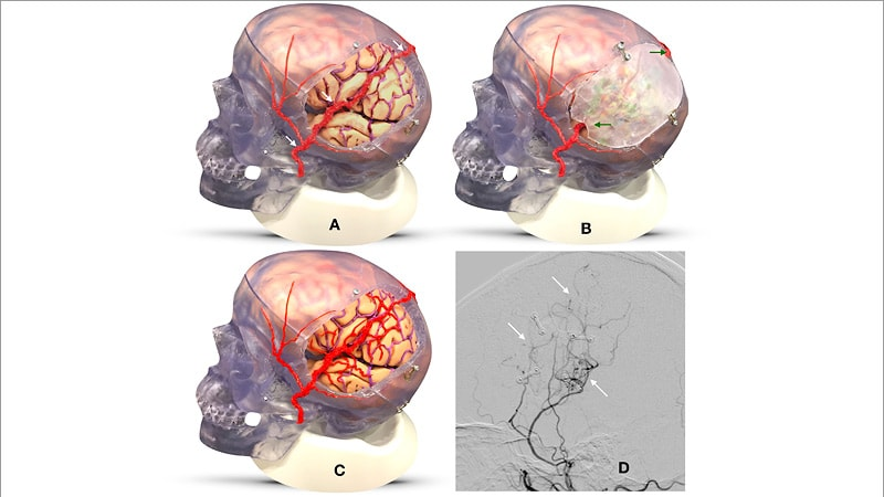 EDAS Surgery Shows Promise for Intracranial Stenosis