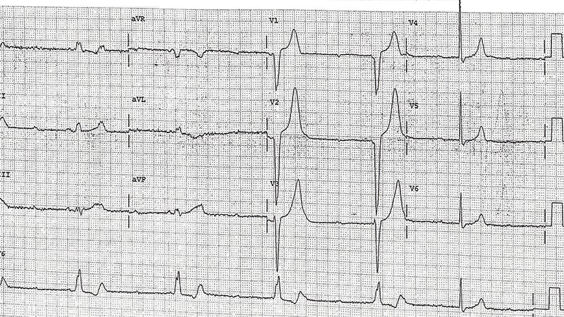 ECG Challenge: Lightheadedness in the ED