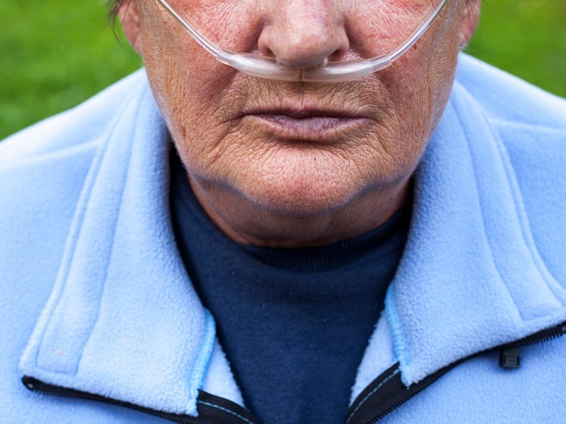 Tiotropium Olodaterol Combo Improves COPD Symptoms