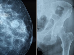 Denosumab Boosts Survival, Not Just Bones, in Breast Cancer