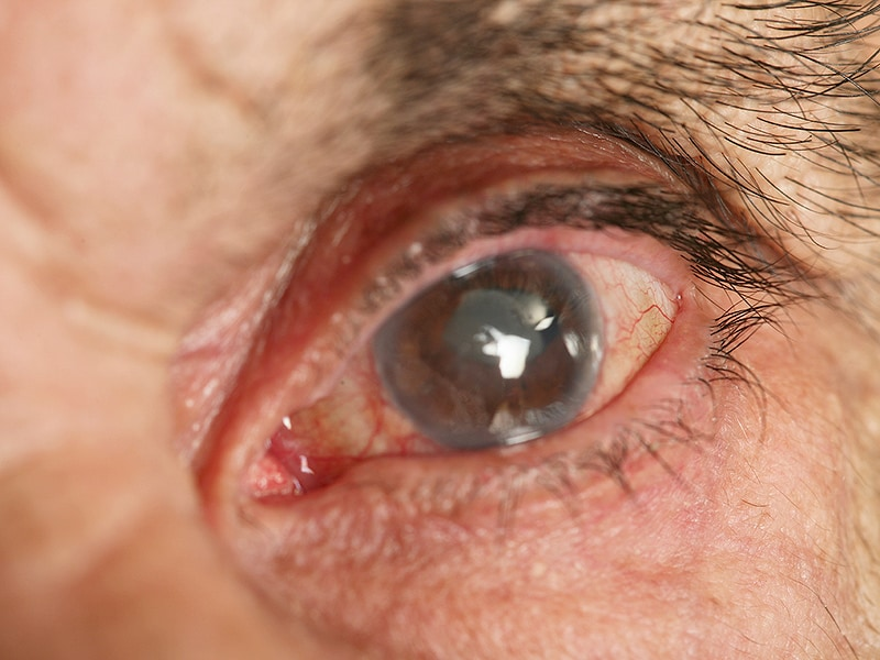 Advantages Claimed For Dropless Cataract Surgery
