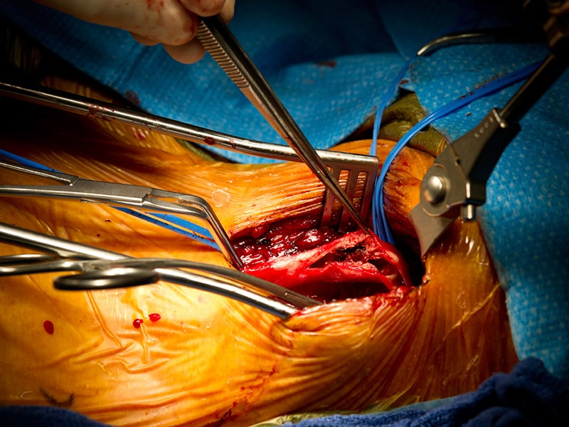 Stenting, Surgery Similar in Asymptomatic Carotid Stenosis