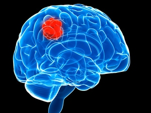 Vaccine Boosts Glioblastoma Survival